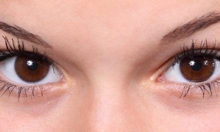 Worki pod oczami – co musisz wiedzieć?